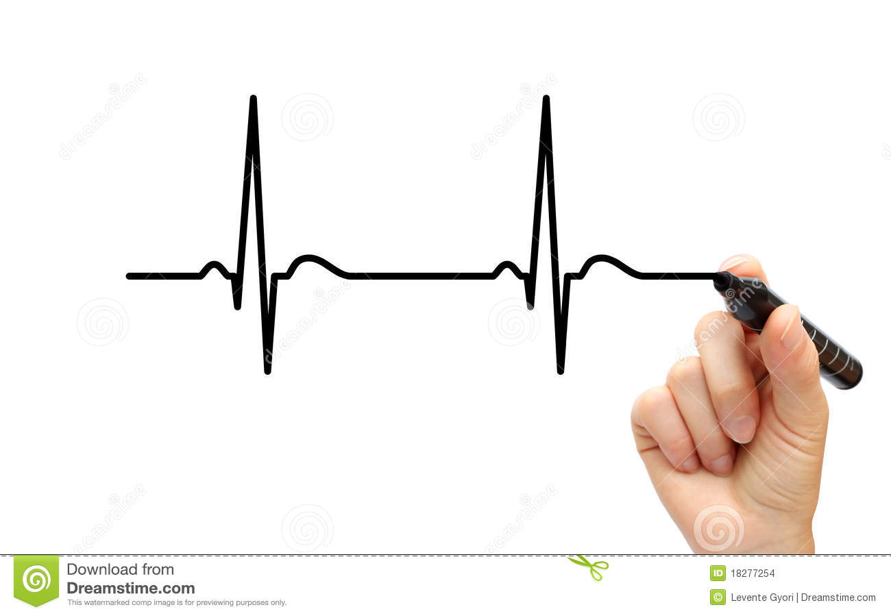 Heartbeat Clipart