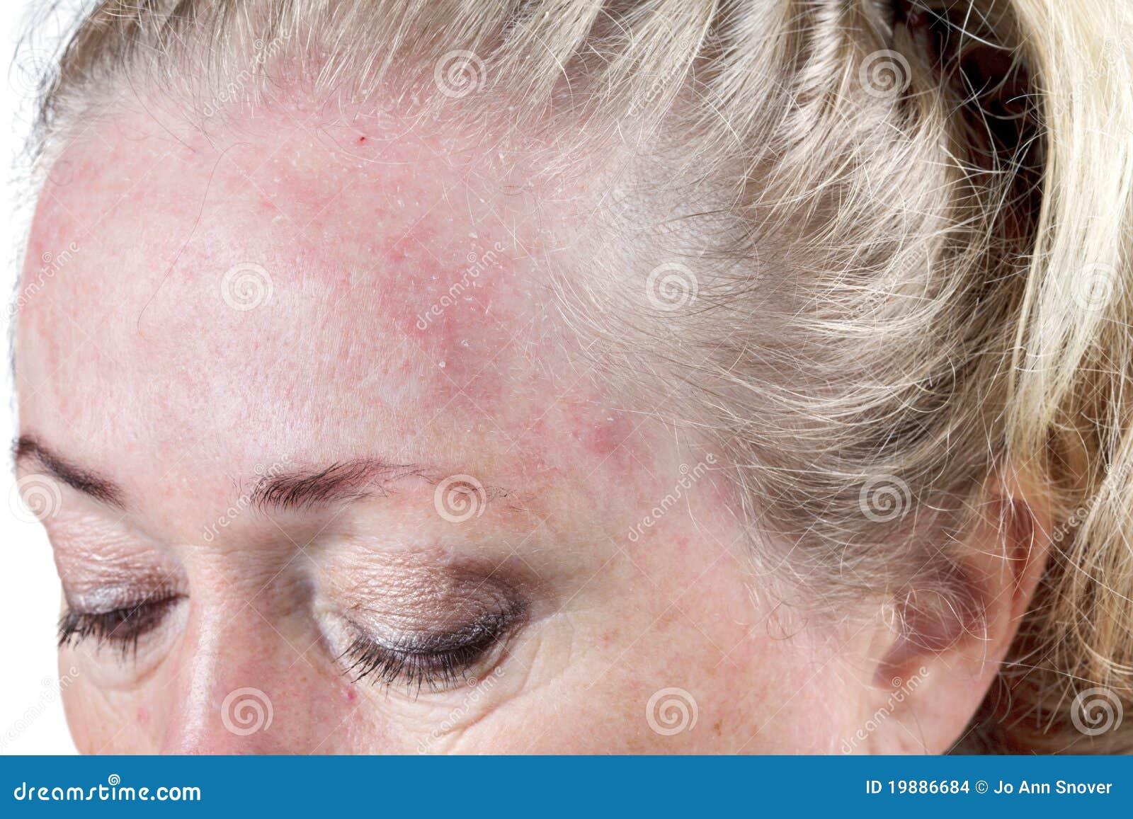 zeer droge huid gezicht