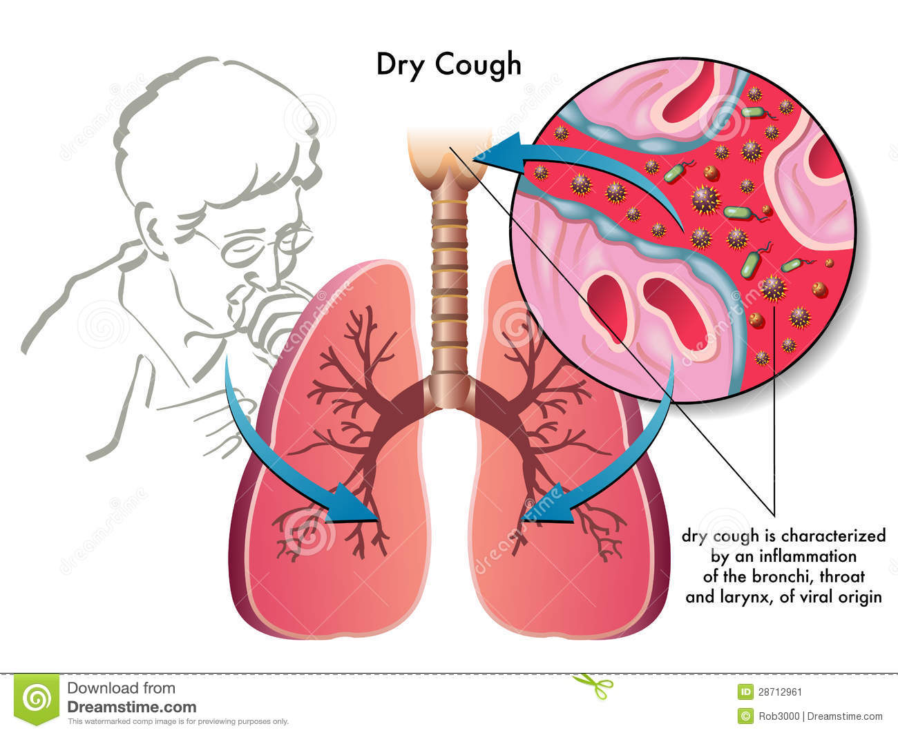 Dry Cough Stock Image Image 28712961