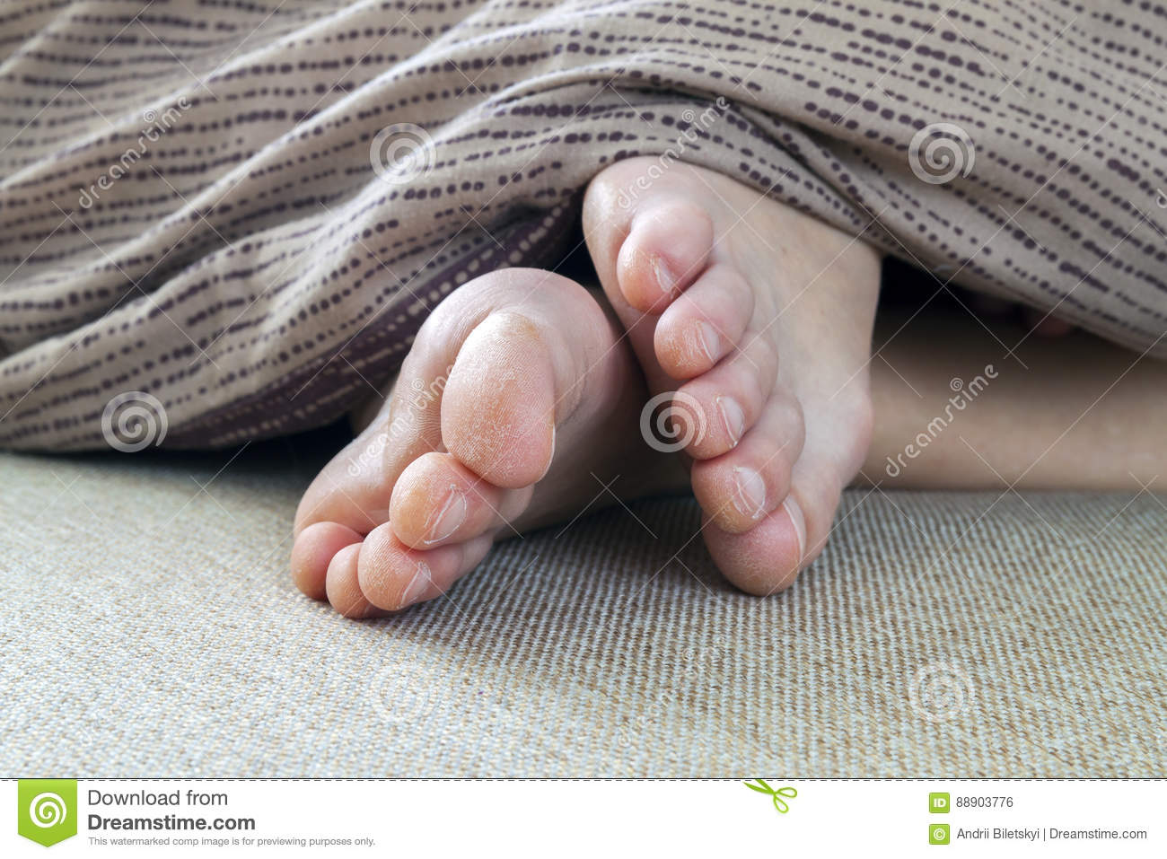 Dry Cracked Skin Of Woman Feet In Bed. Foot Treatment. Stock Photo ...