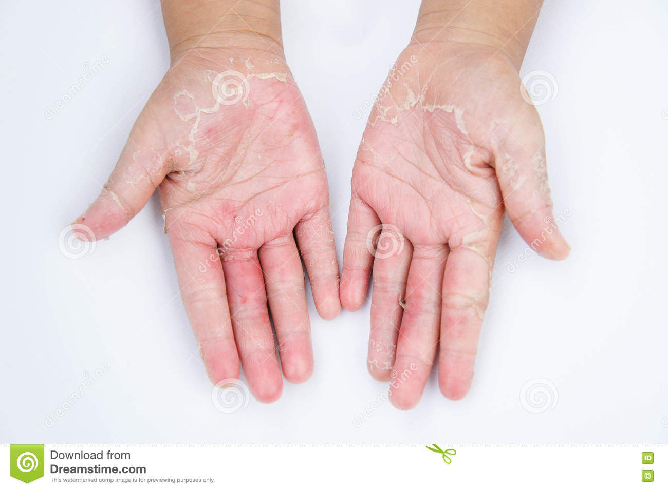 The Dry hands, peel, Contact dermatitis, fungal infections, Skin inf