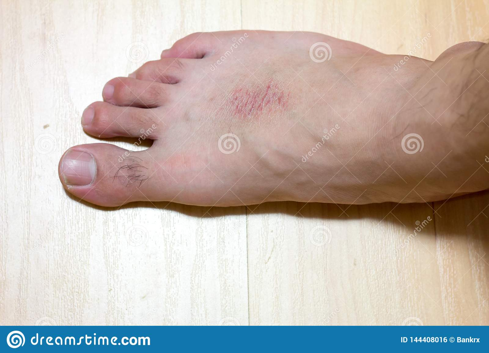 Dry Skin And Rash At Male Foot On Wood Background Stock Photo Image Of Beauty Cream 144408016