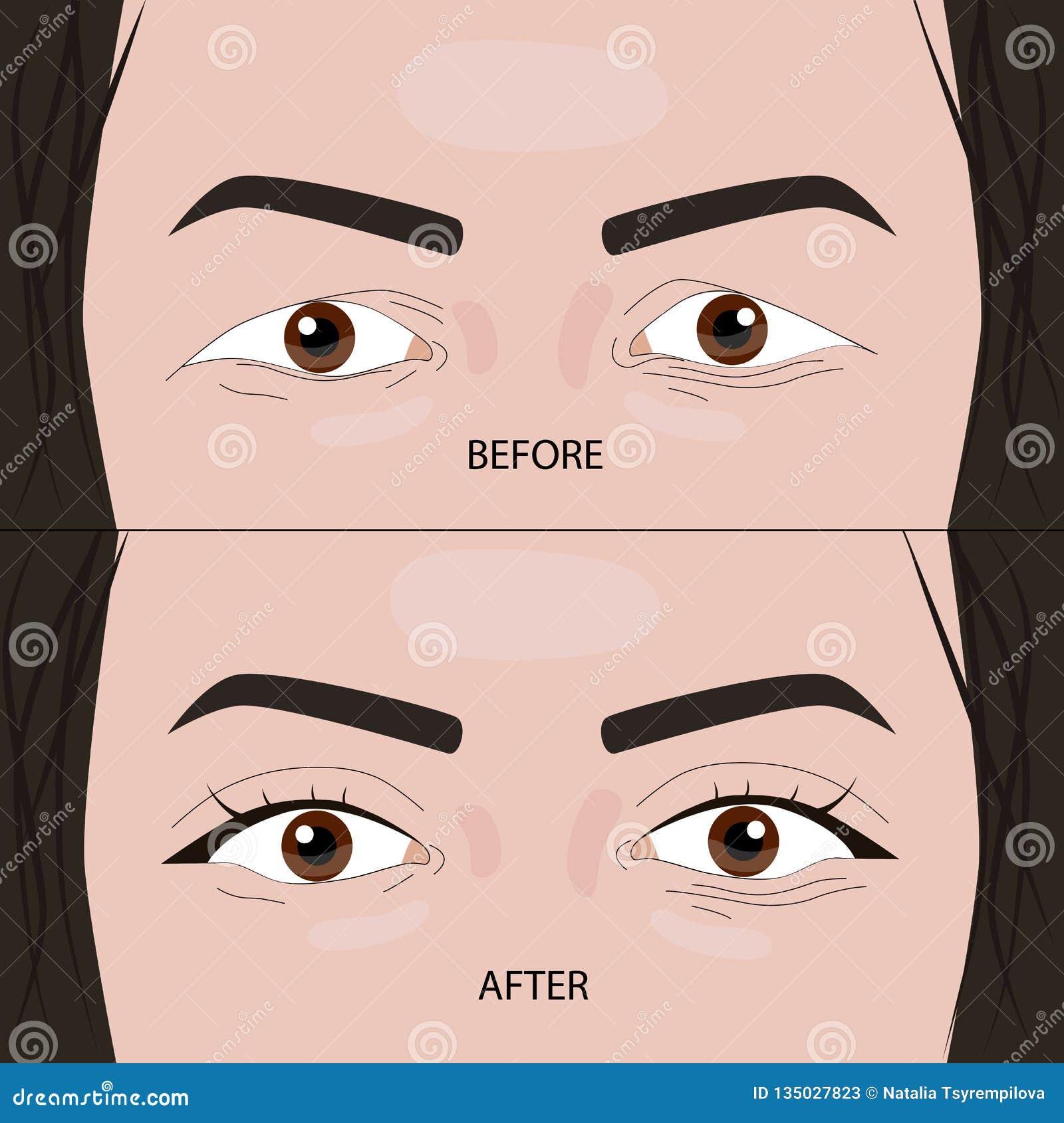 Dubbel illustration för ögonlockkirurgi före och efter