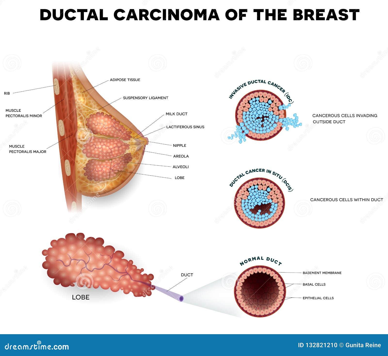 Ductal cancer