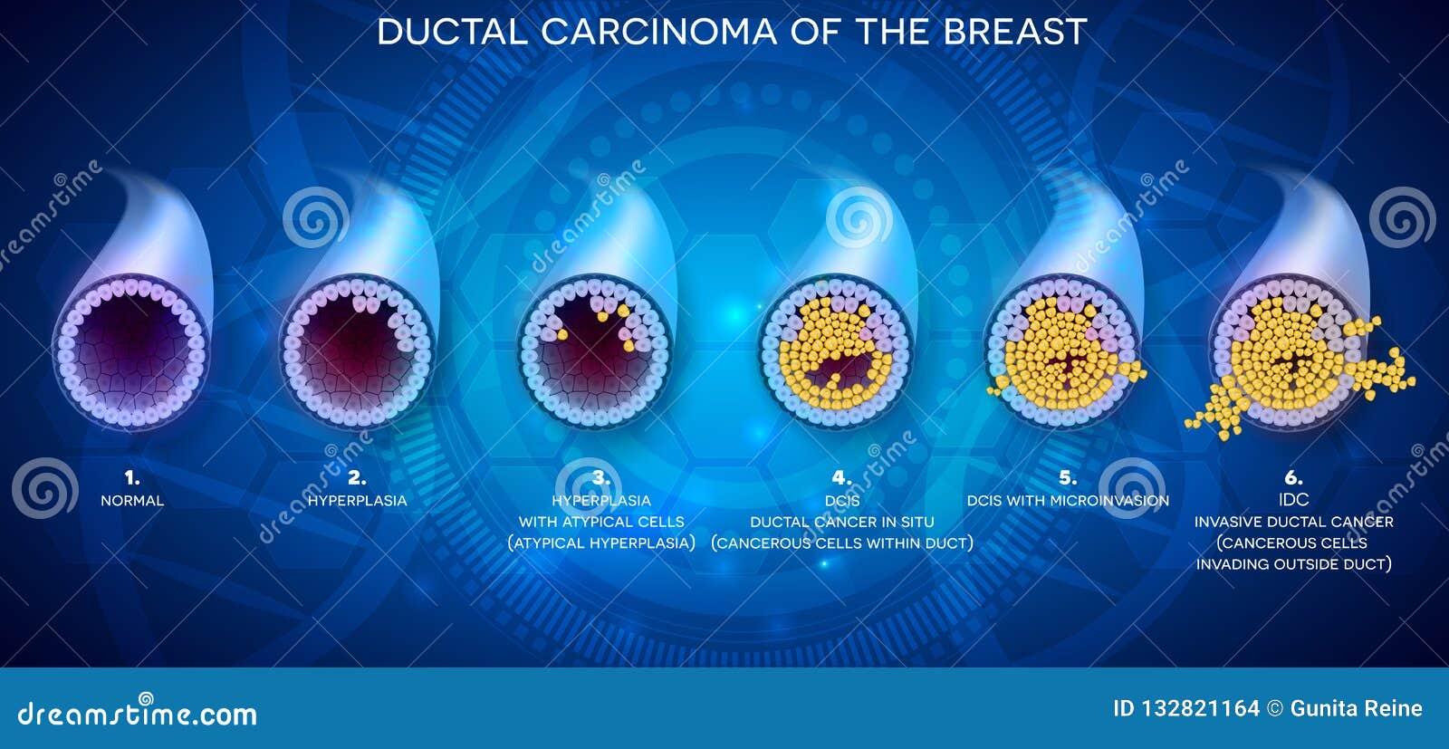 Ductal Krebsgeschwürentwicklung