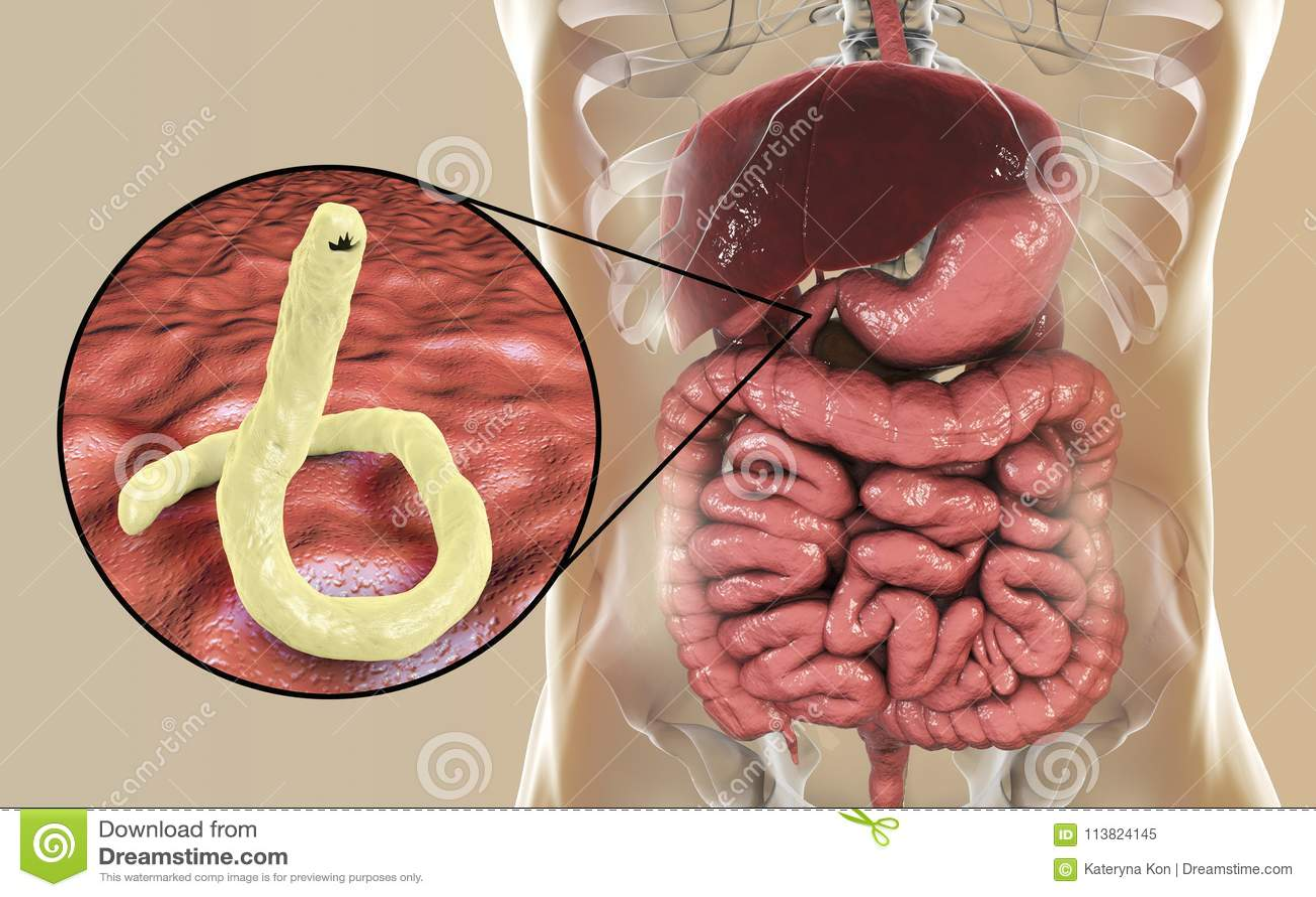 identificación de gusanos parásitos humanos