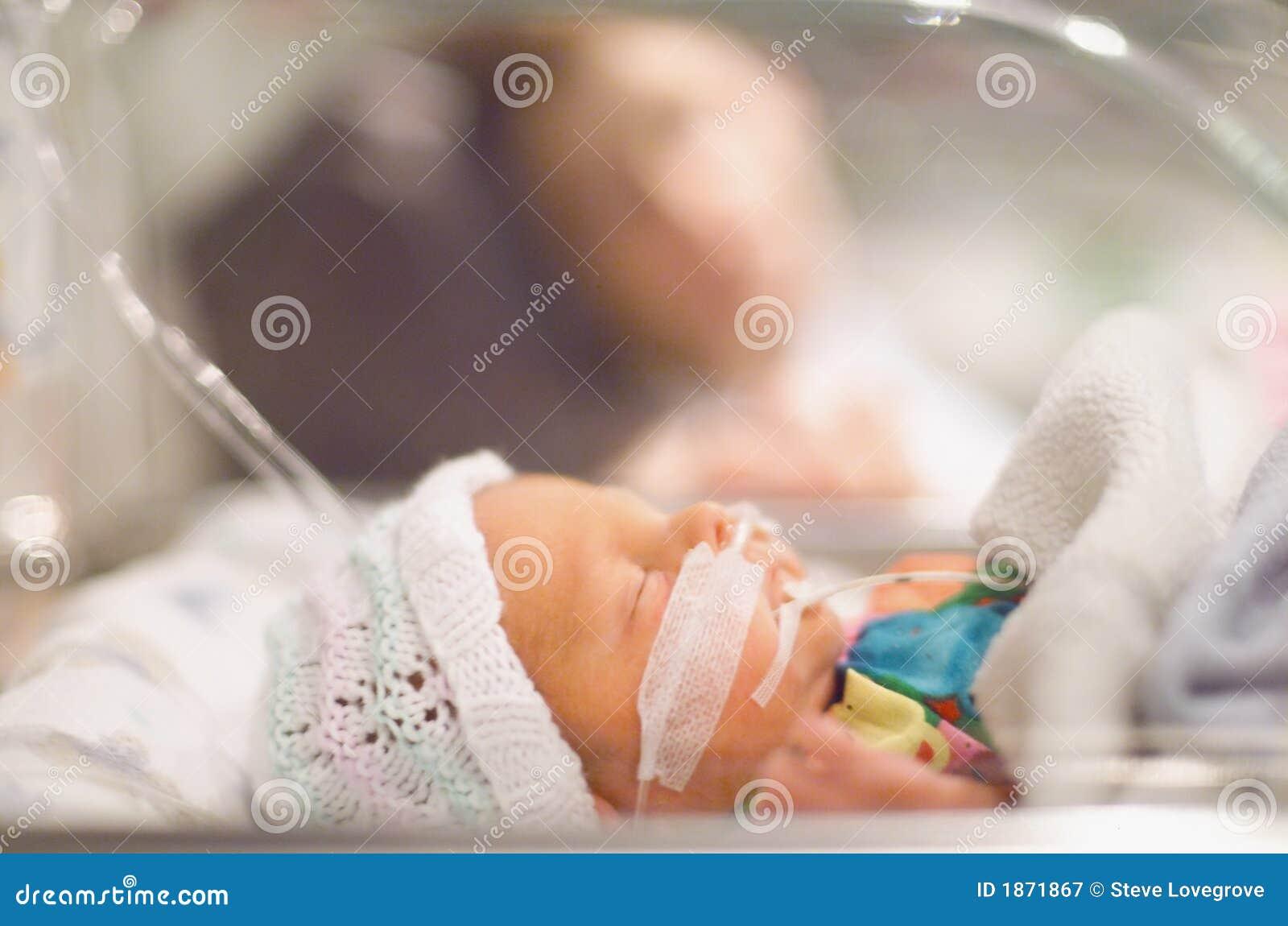 Dziecko przedwczesne