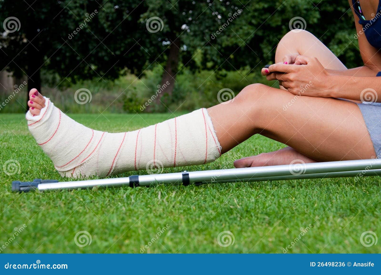 Dziewczyna z nogą w tynku gawędzeniu