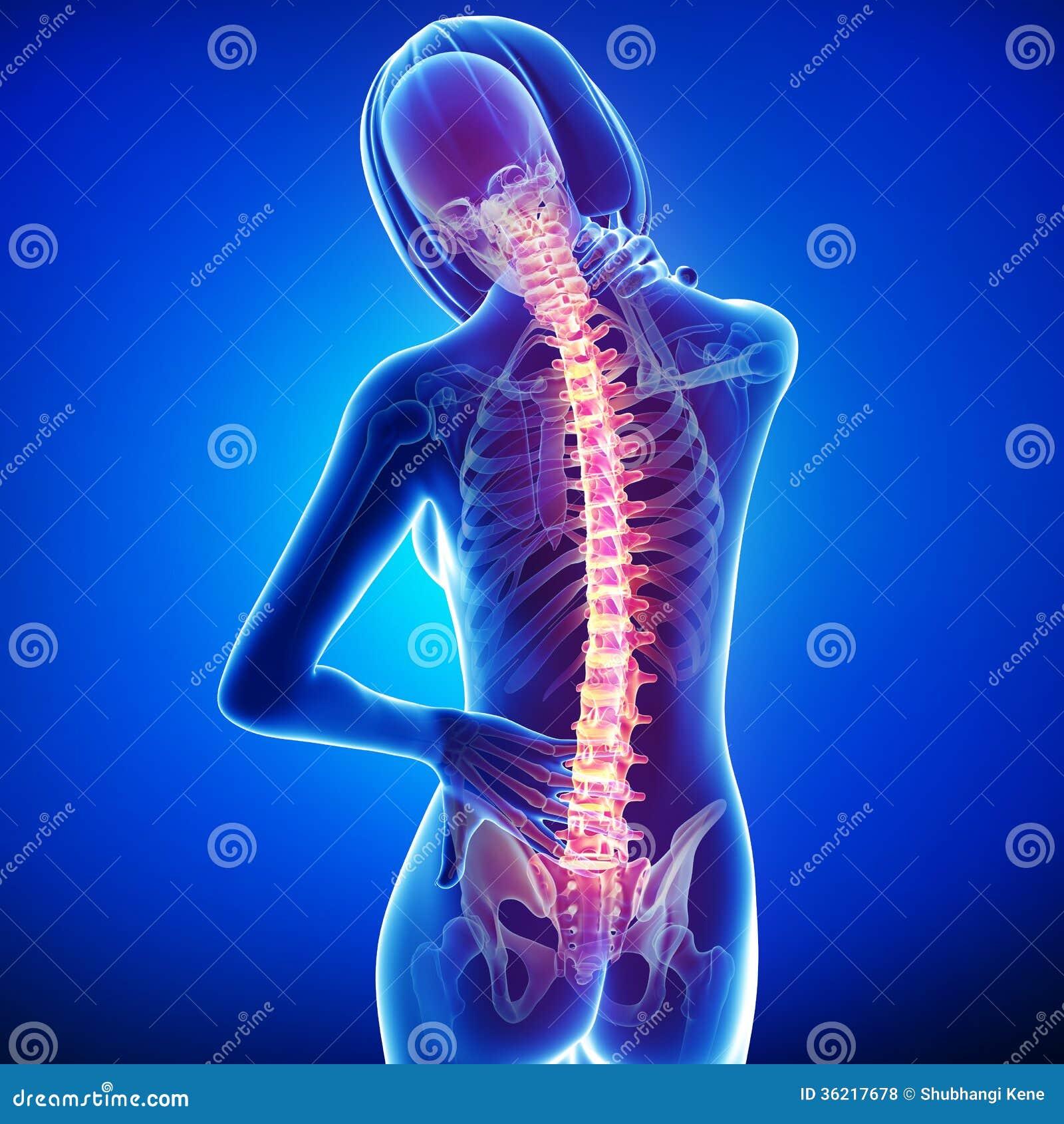 Żeński ból pleców