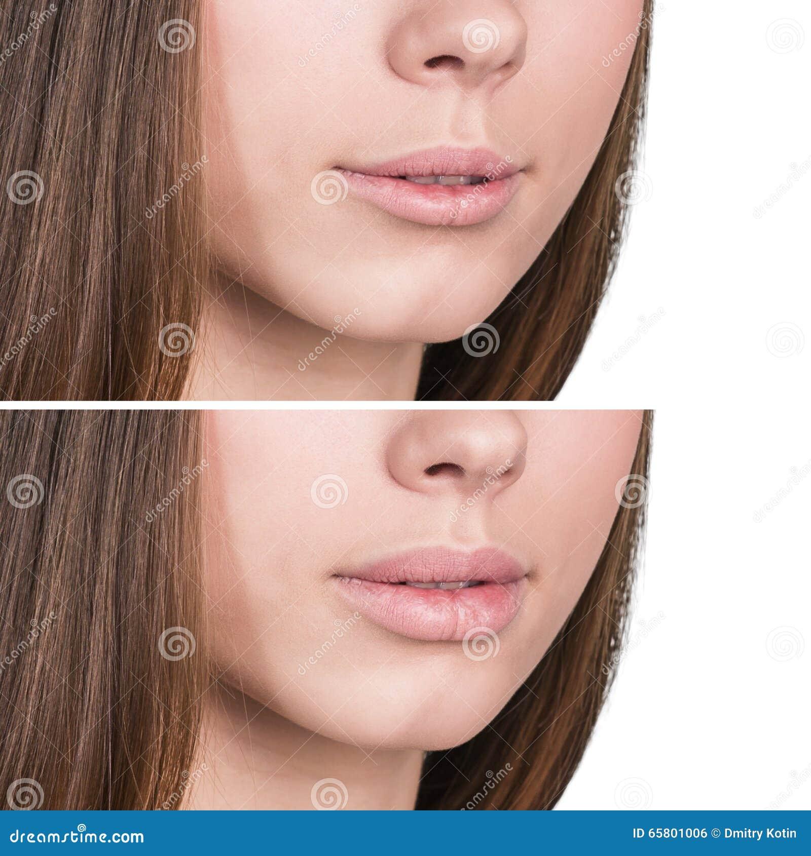 Żeńskie wargi przed i po augmentacją