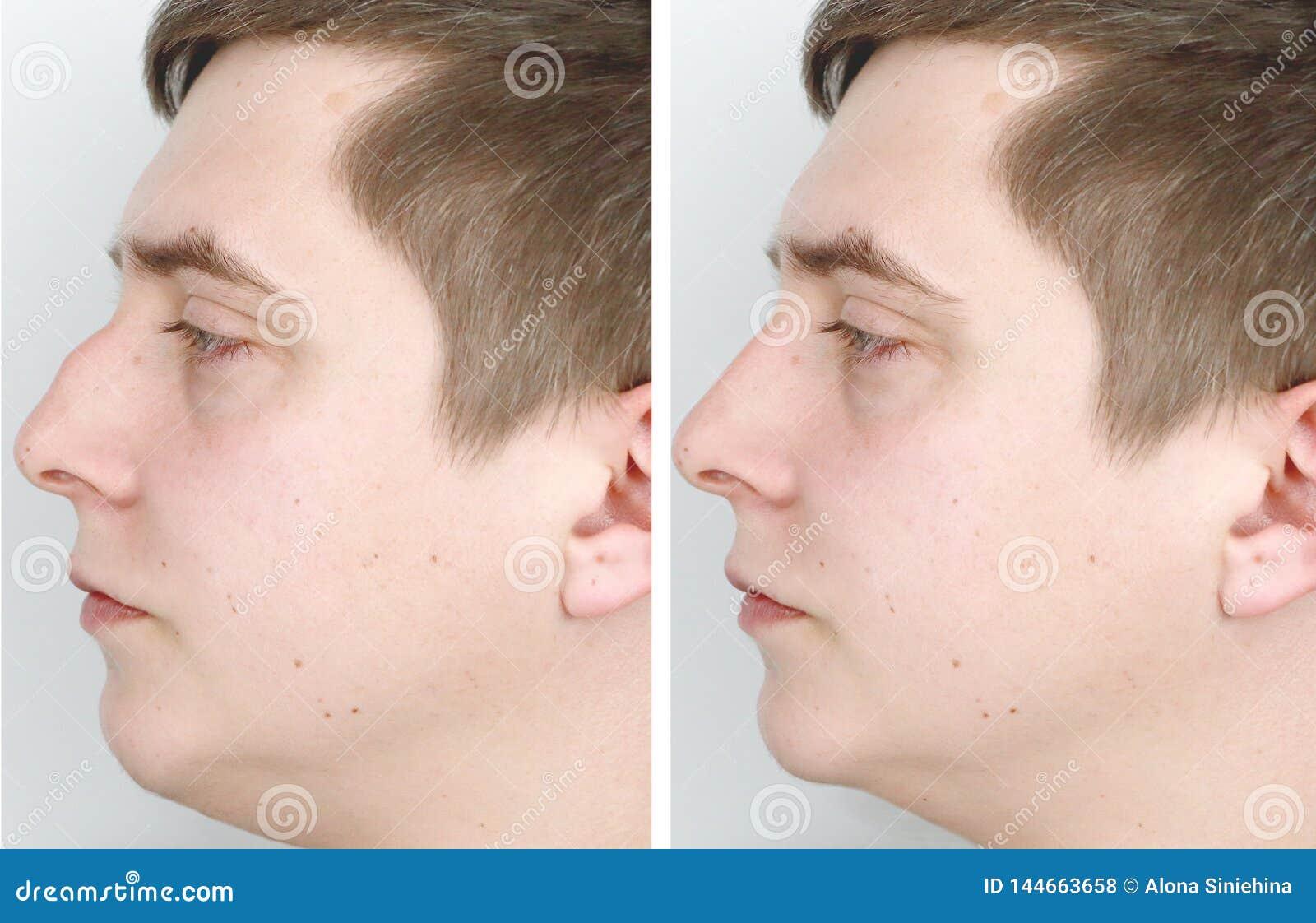 鼻整形画像