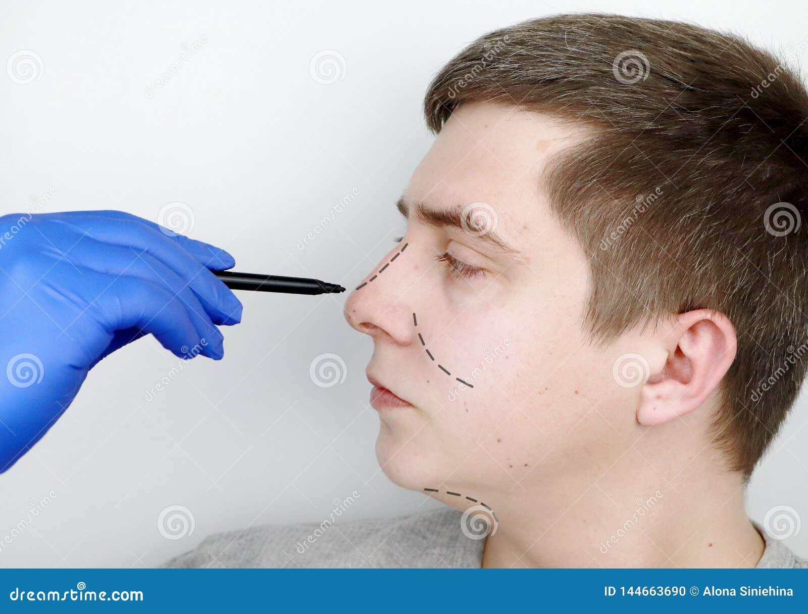 E Avant chirurgie de nez, rhinoplasty