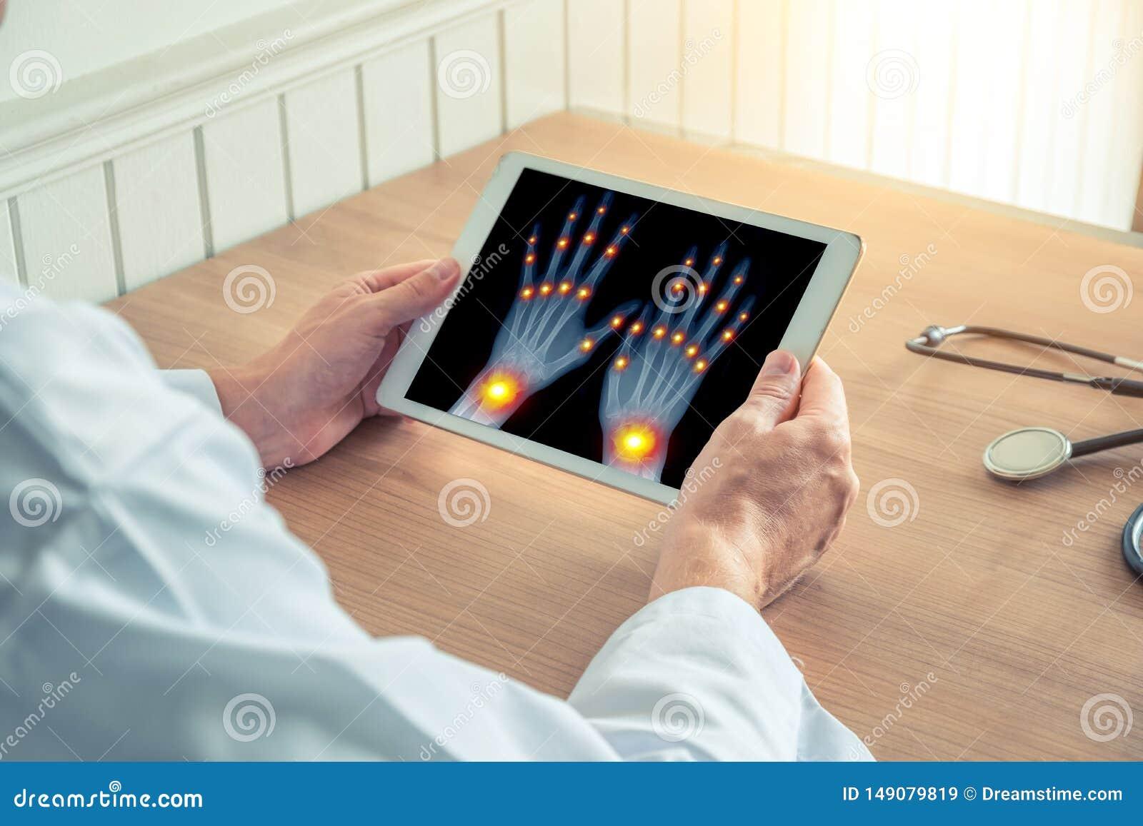 Medico con una tavoletta digitale a raggi X Dolore alle articolazioni delle dita e dei polsi Osteoartrite