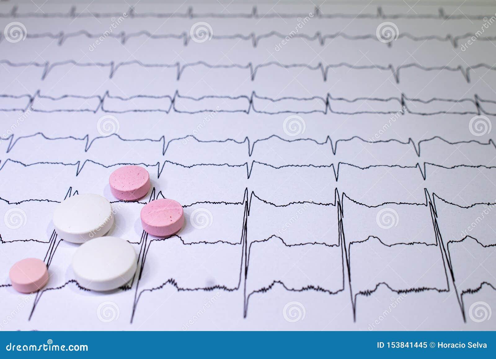 Электрокардиограмма с синдромом Brugada Покрашенные таблетки на пути EKG Неожиданная сердечная смерть должная к аритмичностям