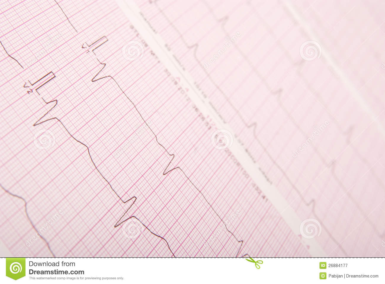 how to read ecg results
