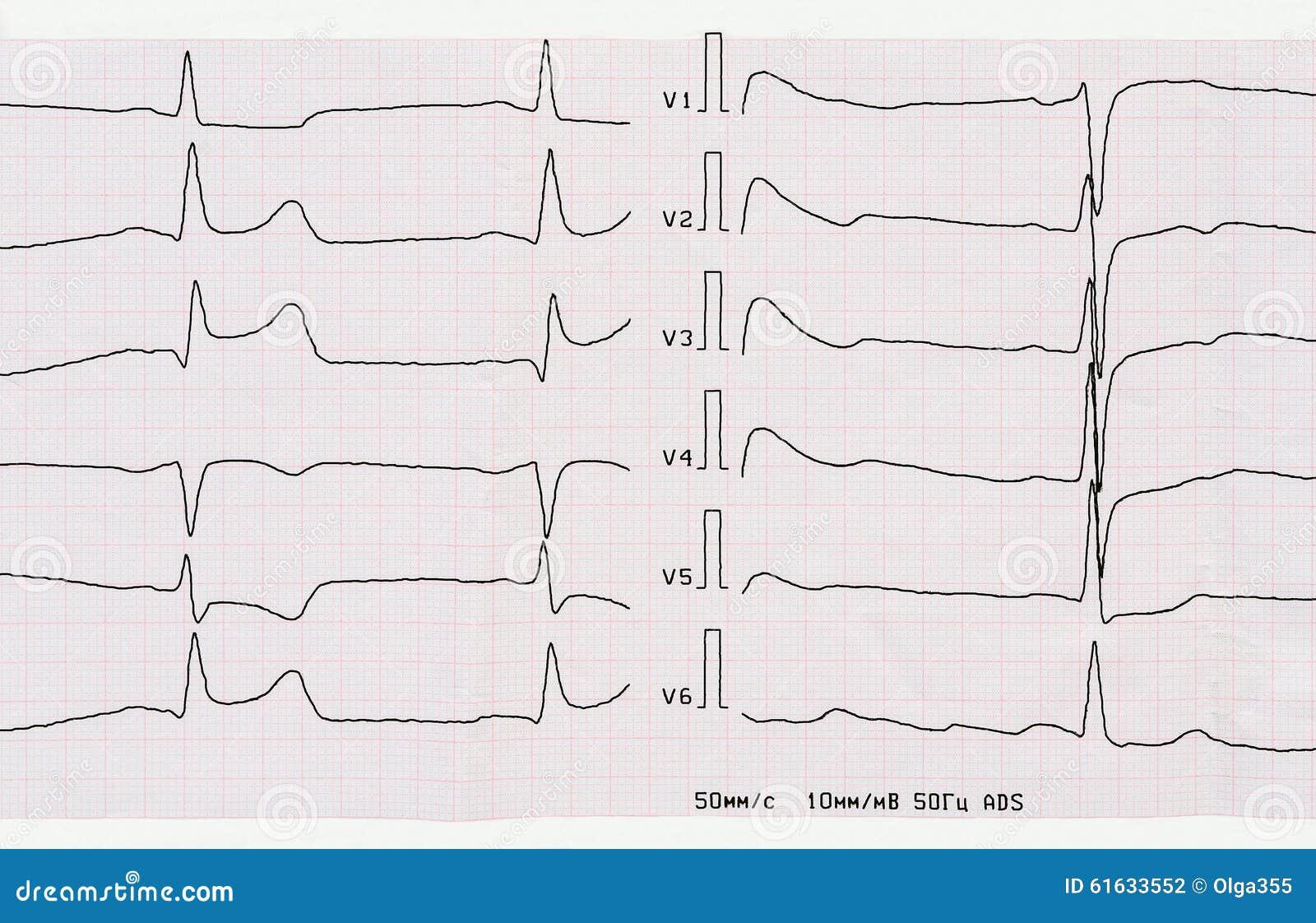 ECG con período agudo de infarto del miocardio posterior macrofocal