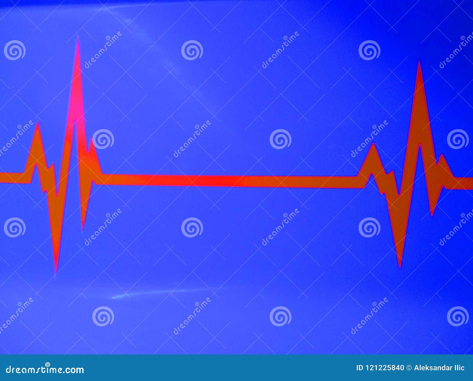 ECG do eletrocardiograma