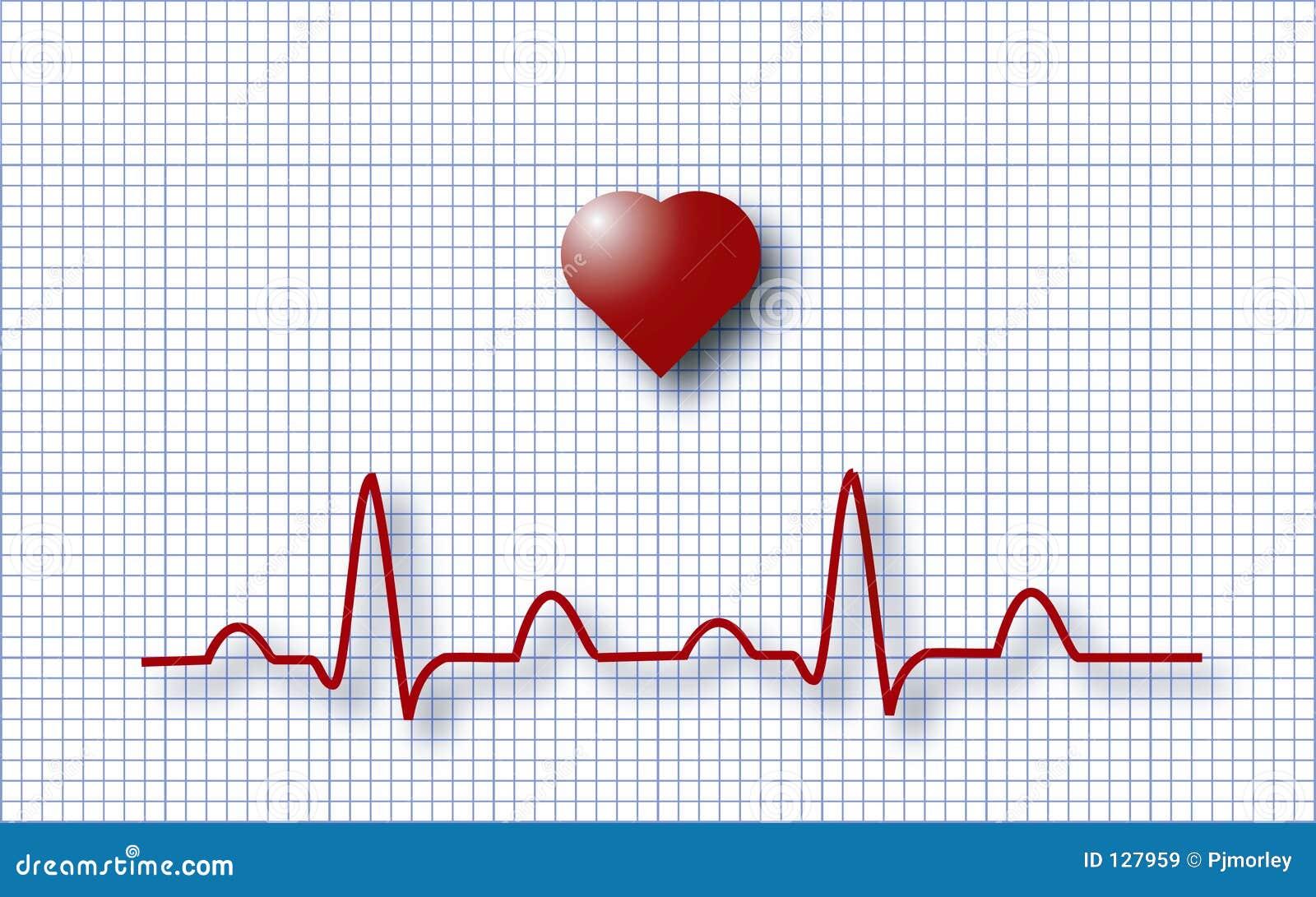 ECG EKG Royalty Free Stock Images - Image: 127959