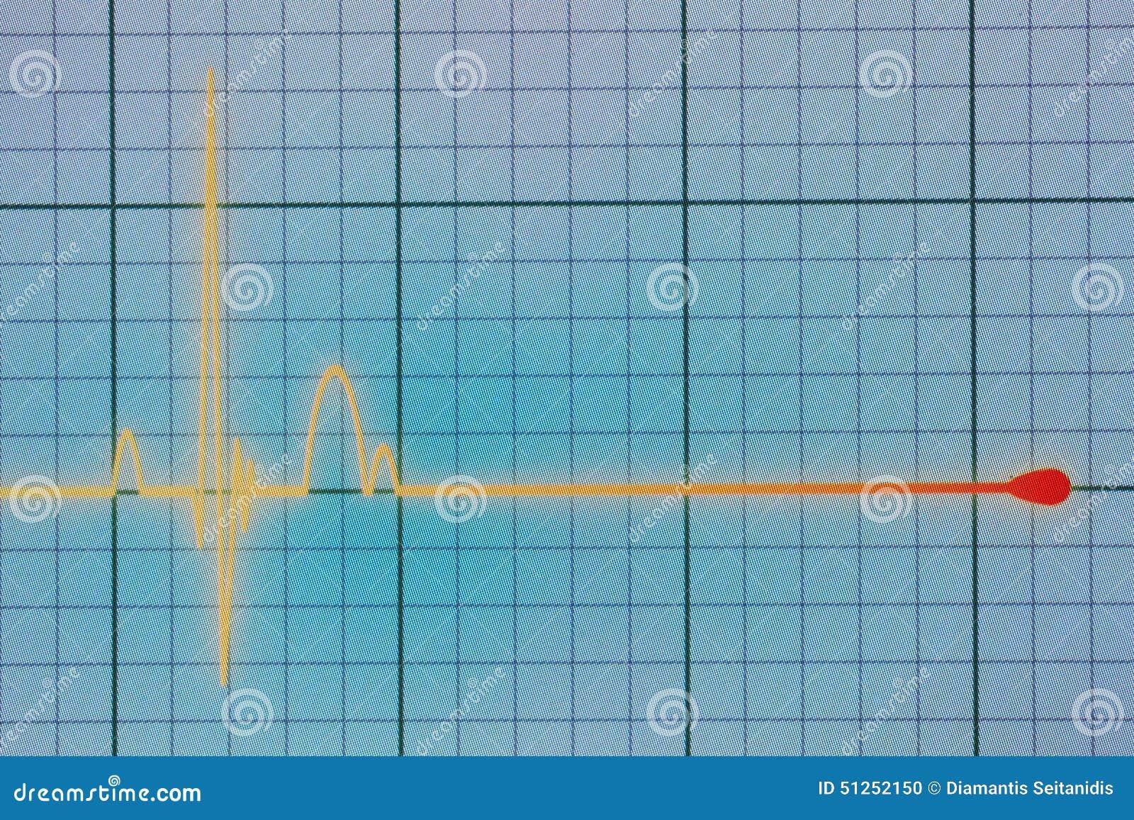 ECG-/EKGbildskärm