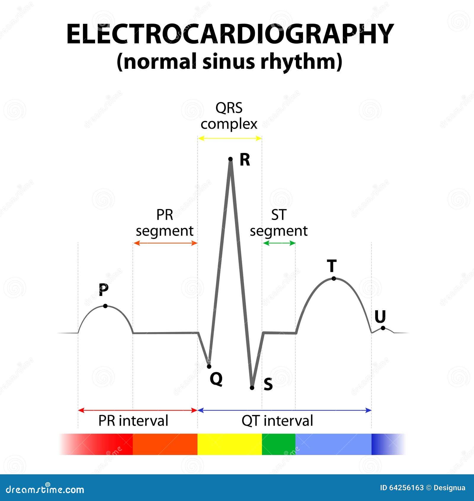 ECG of a heart in normal sinus rhythm