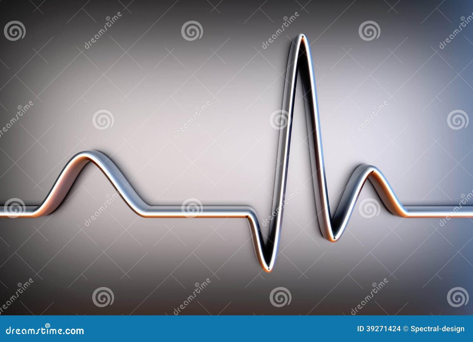 ECG line