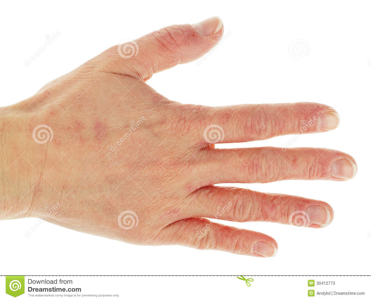 how to stop eczema itching on hands