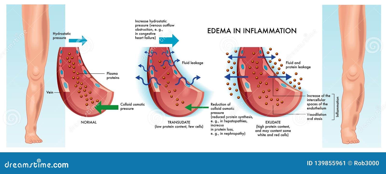 Edema Medical Illustration Stock Vector  Illustration Of Diagram