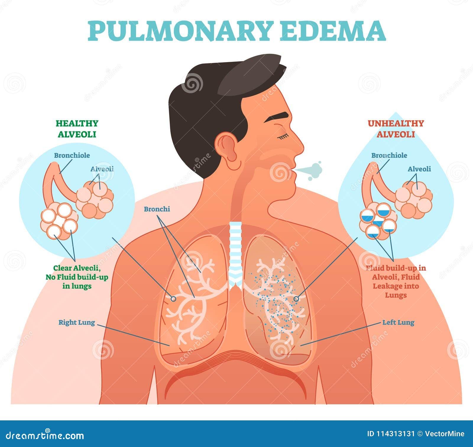 Edema Pulmonar, Diagrama Del Ejemplo Del Vector Del Problema Del ...