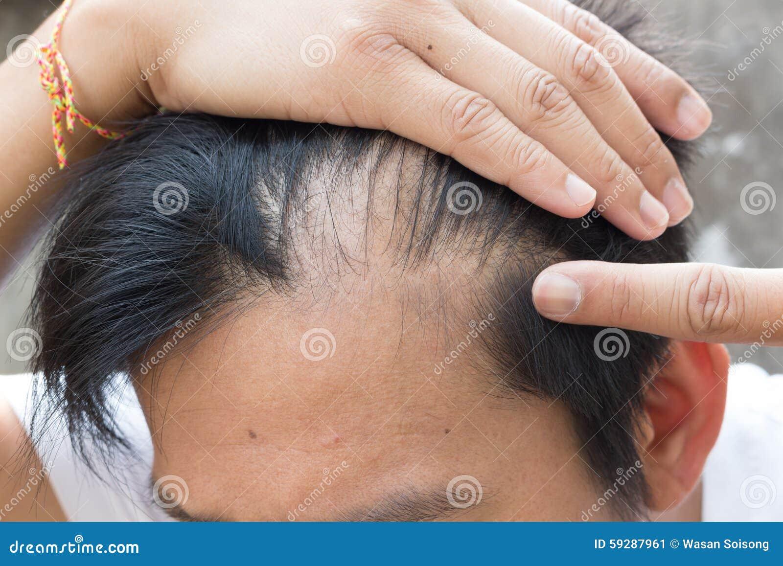 Edição do homem superior e da queda de cabelo