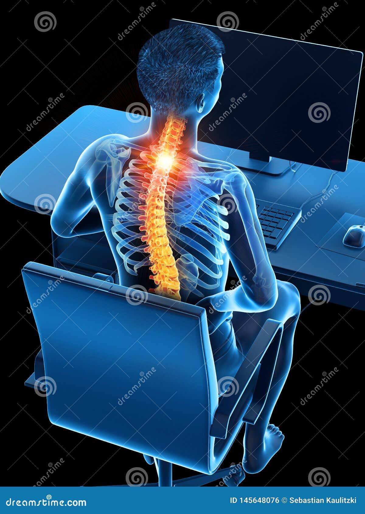 Een beambten pijnlijke rug
