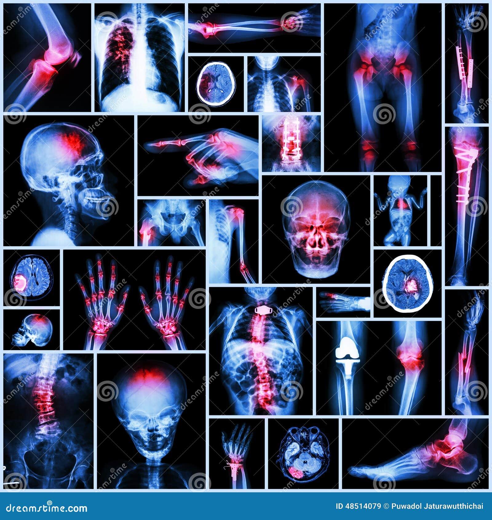 Een deel van de inzamelingsröntgenstraal van menselijke, Orthopedische verrichting, Veelvoudige ziekte