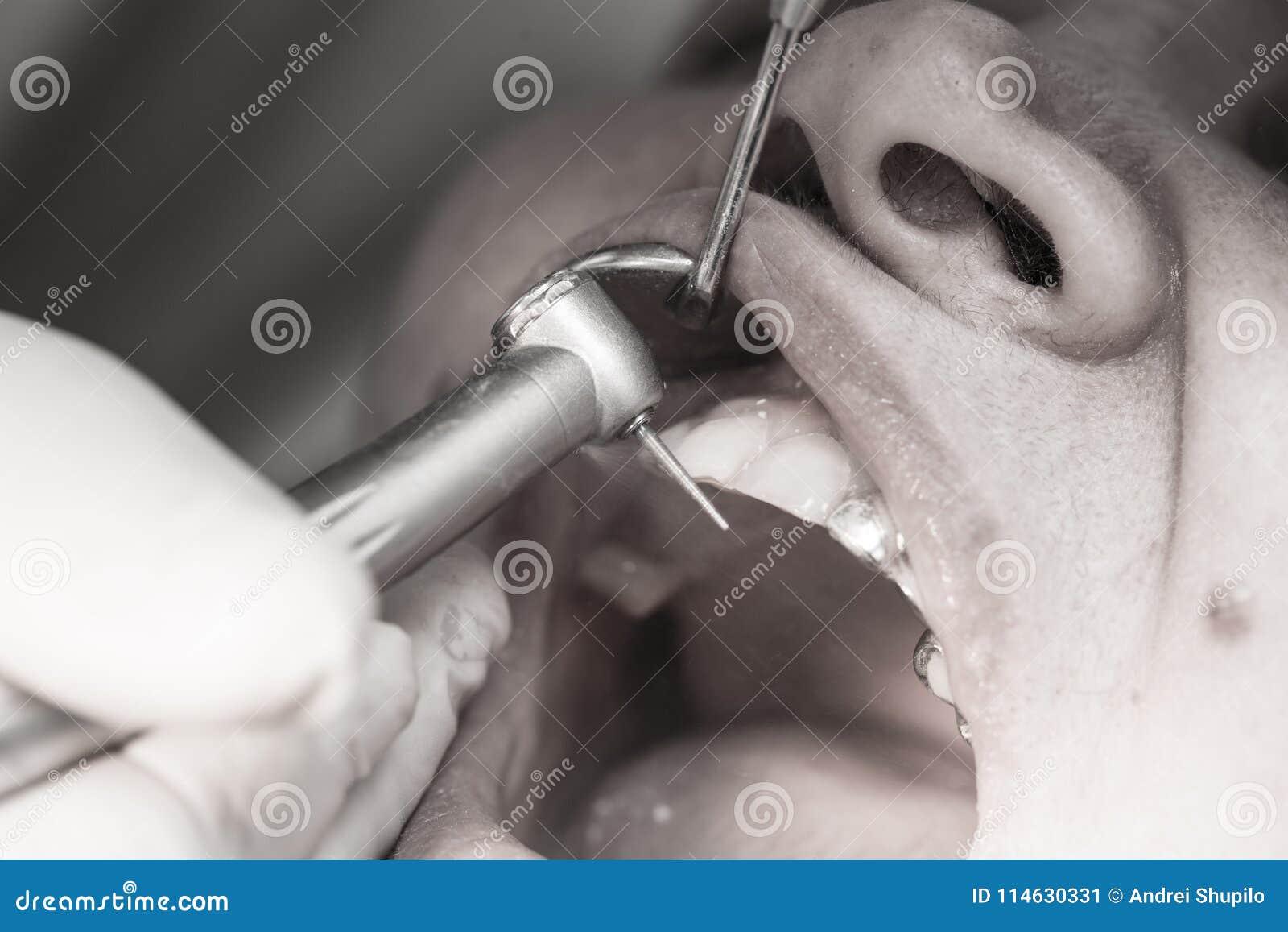 Een tandarts maakt tot tanden aan een vrouw