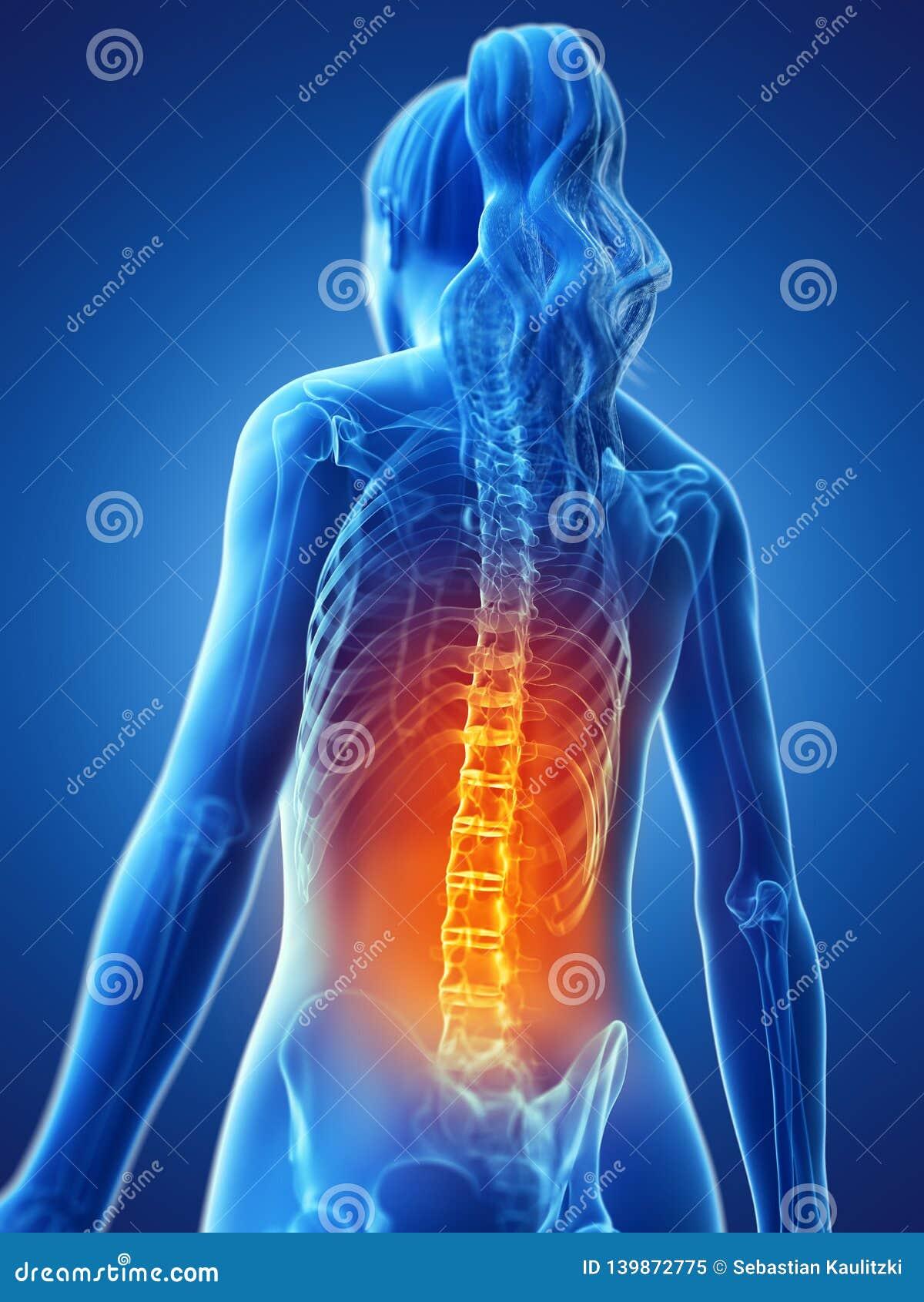 Een vrouw die een pijnlijke rug hebben
