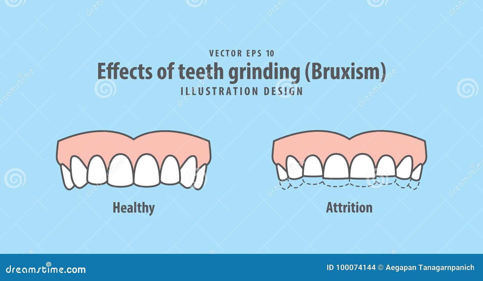 Efectos del vector del ejemplo del pulido de dientes Bruxism sobre azul