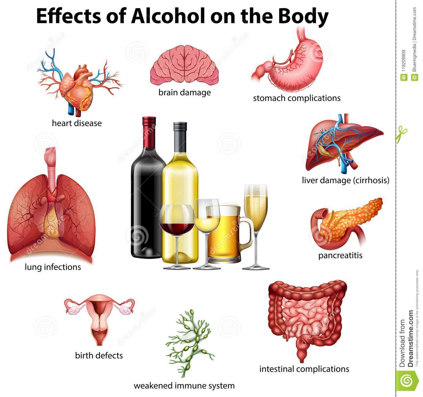 Alcohol On The 119209909 Stock Of Birth - Body Vector Illustration Effects Infections
