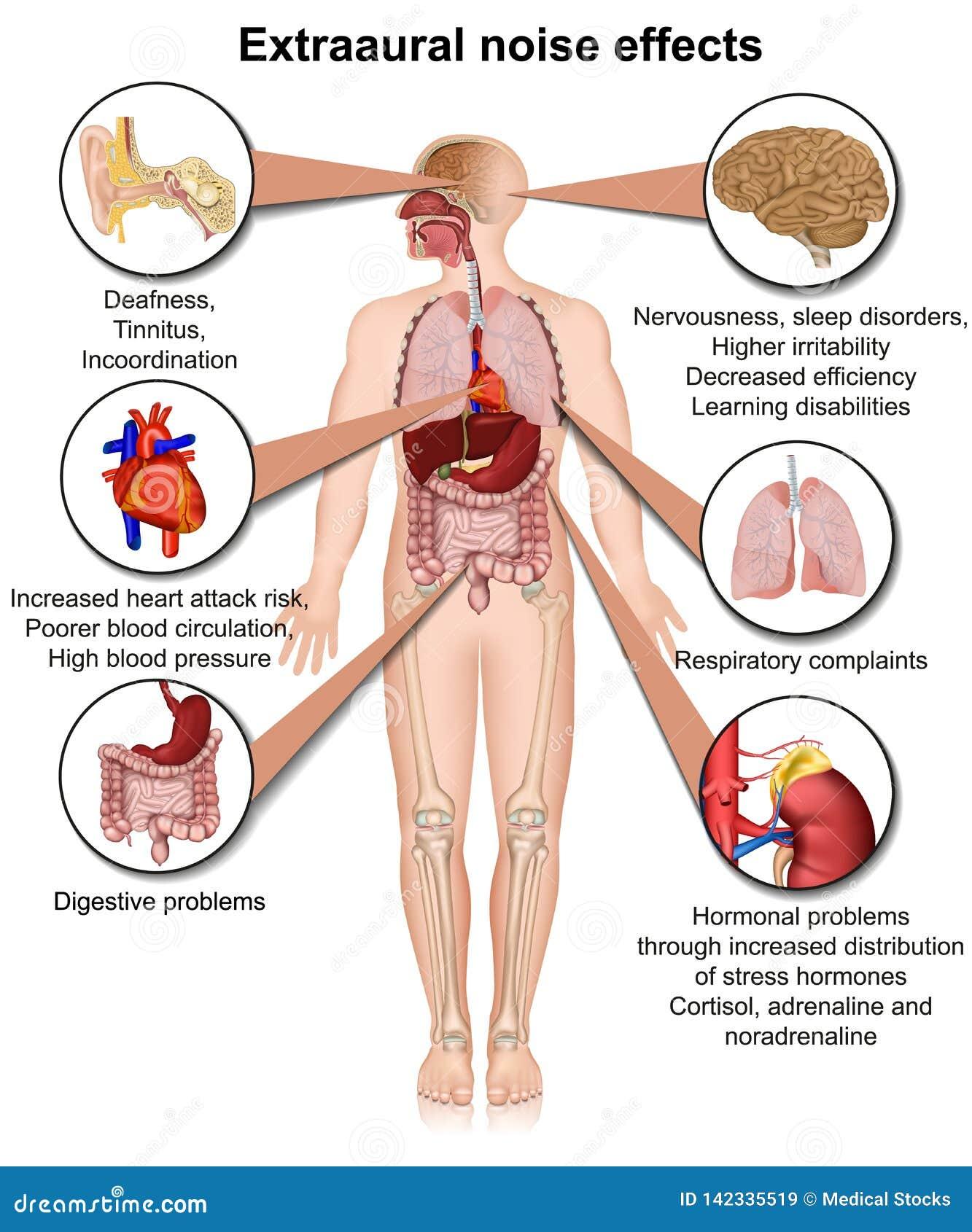 Effets sur la santé d Extraaural d illustration médicale chronique d exposition au bruit