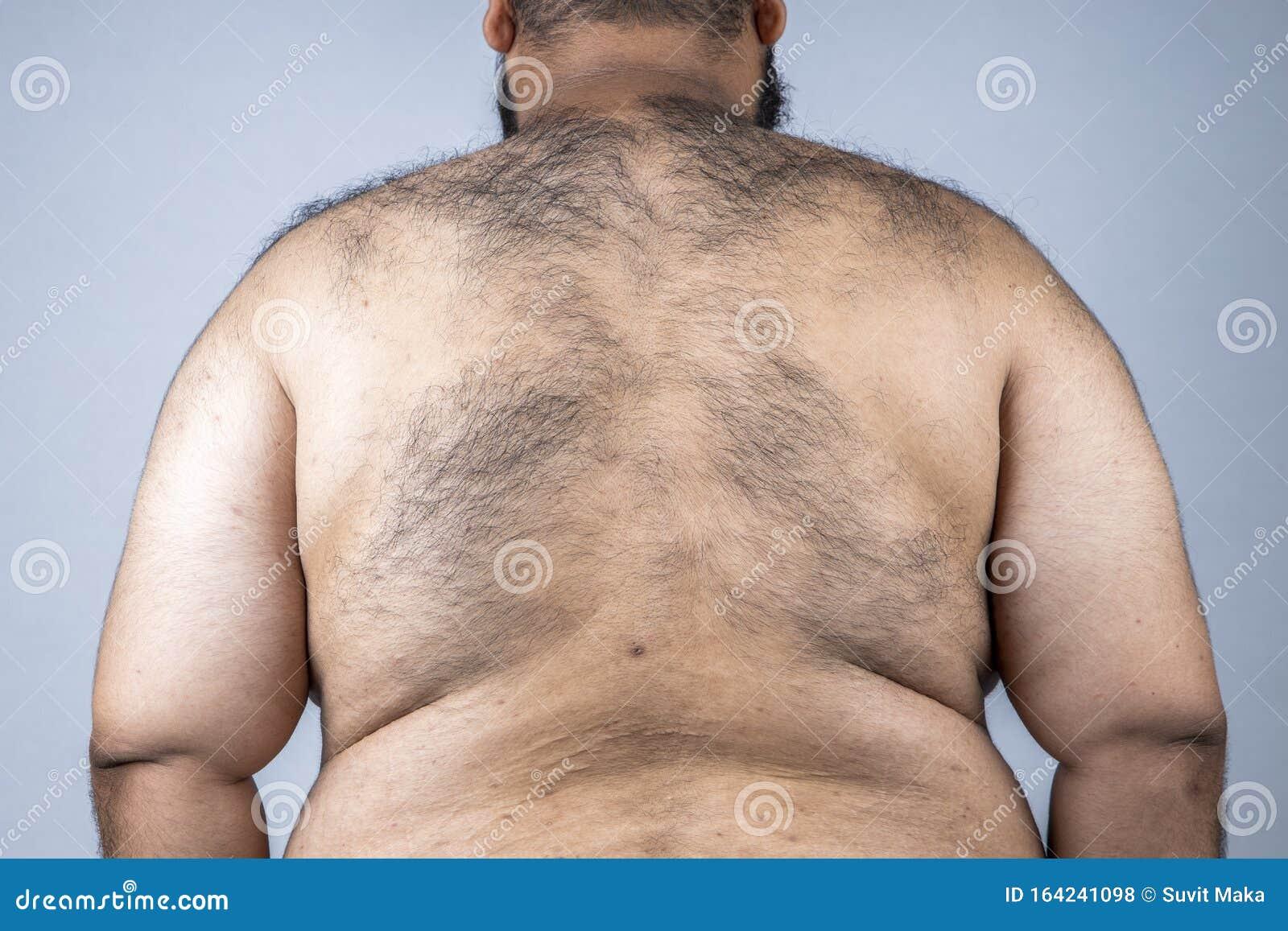 Mann dicker beim harter bauch Darmkrebs: Symptome