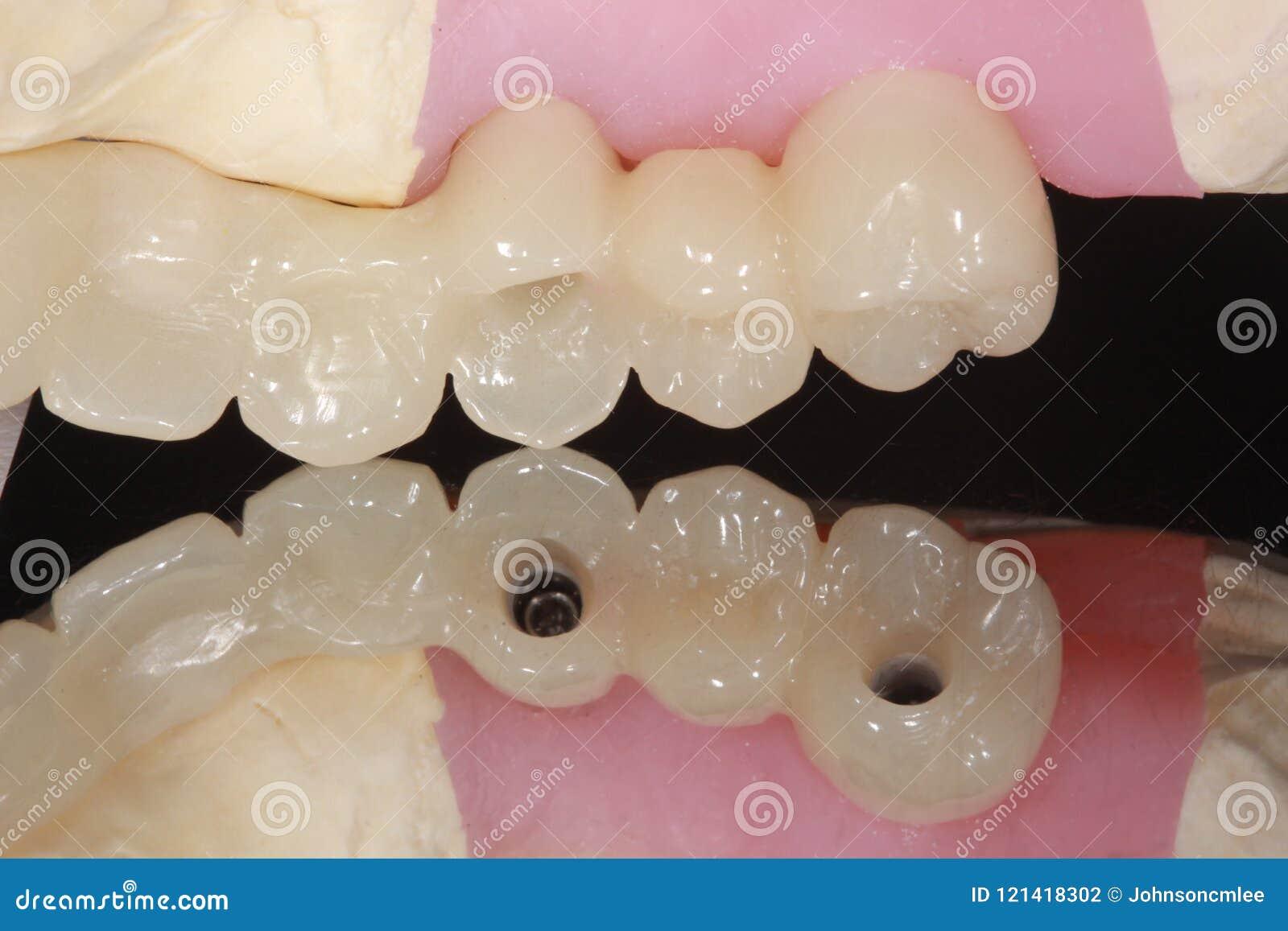 Eine zahnmedizinische Implantatbrücke mit Reflexion des occlusal Schraubenlochs