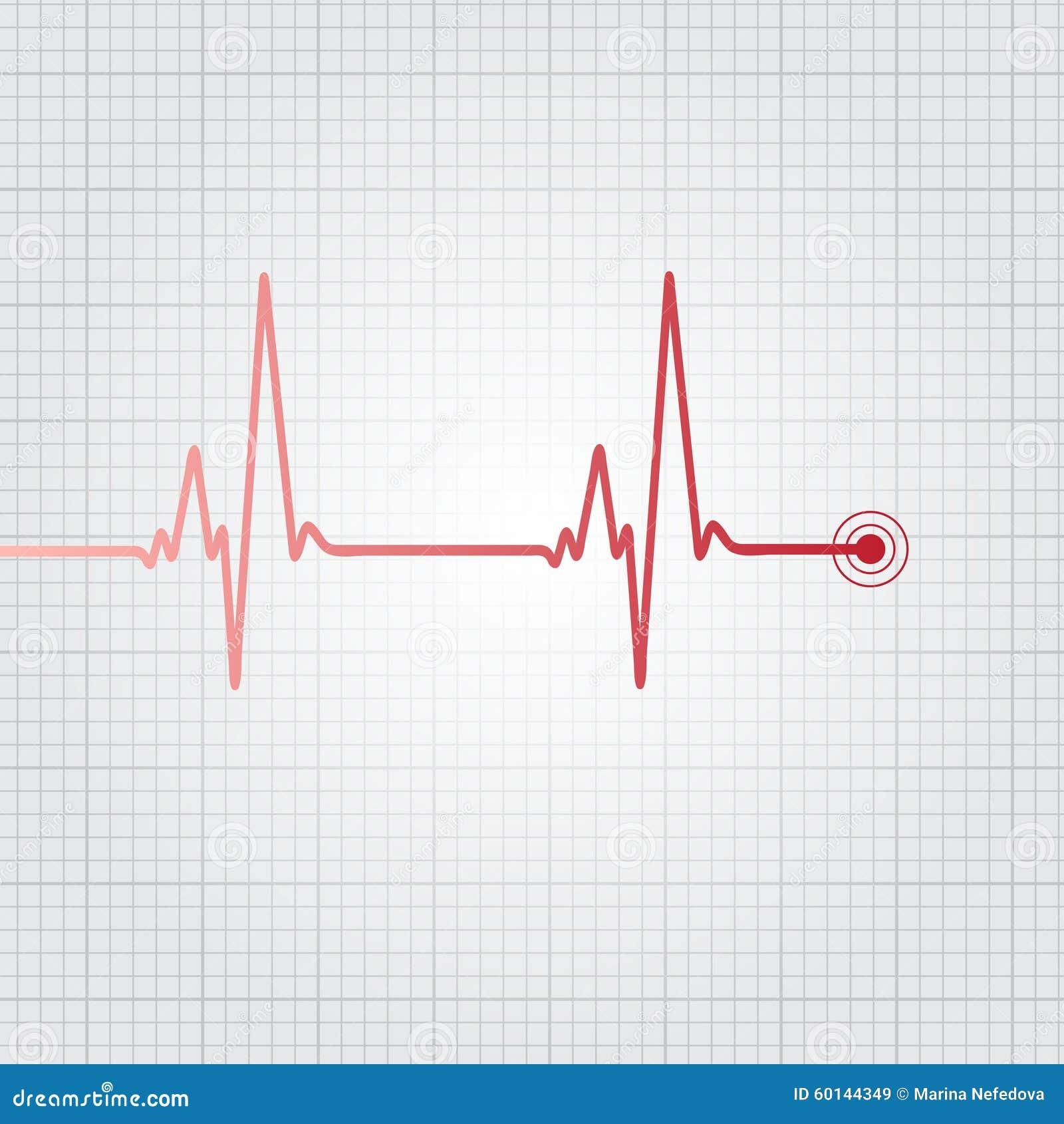 Excelente Diagrama De Marcado De Corazón Humano Elaboración ...