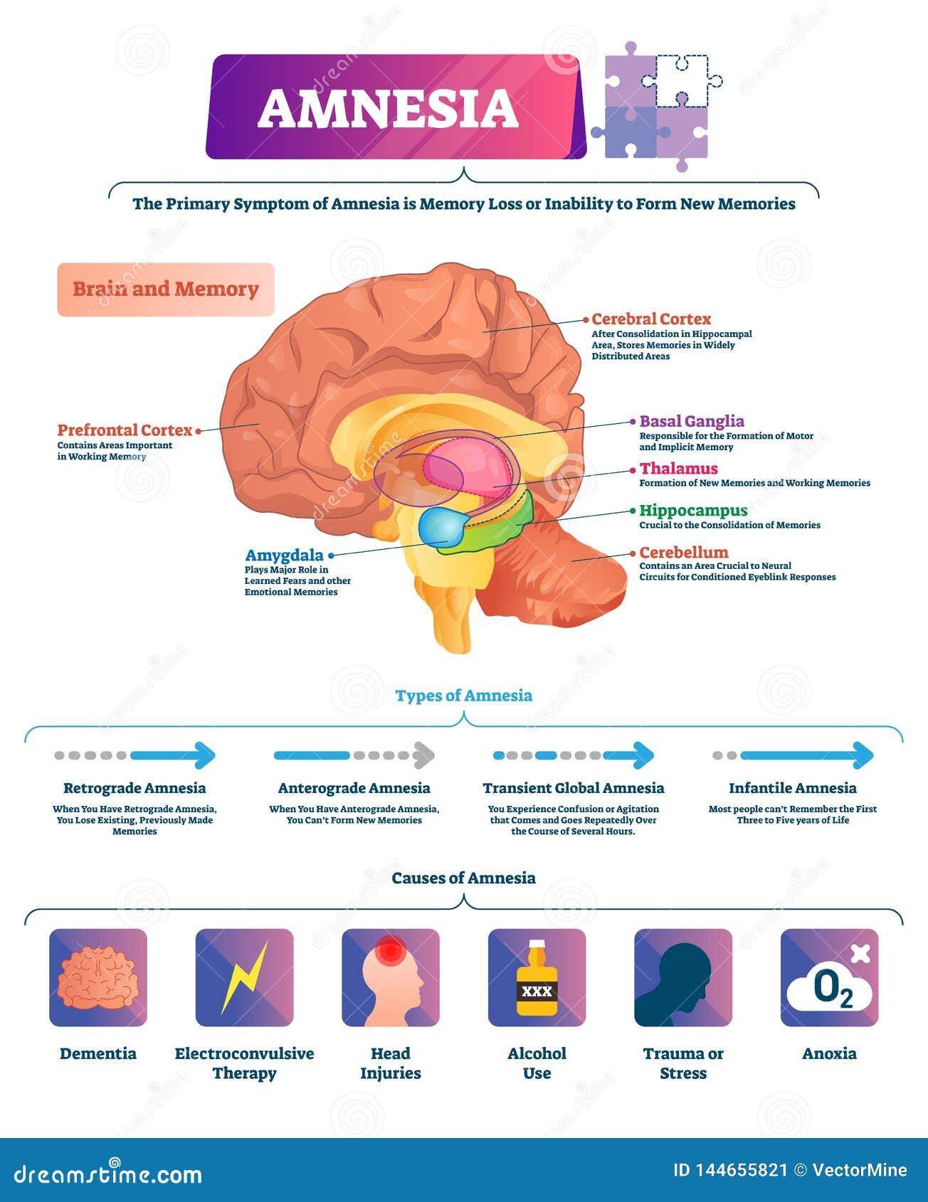 Ejemplo del vector de la amnesia Los tipos etiquetados de la enfermedad de la pérdida de memoria del cerebro proyectan