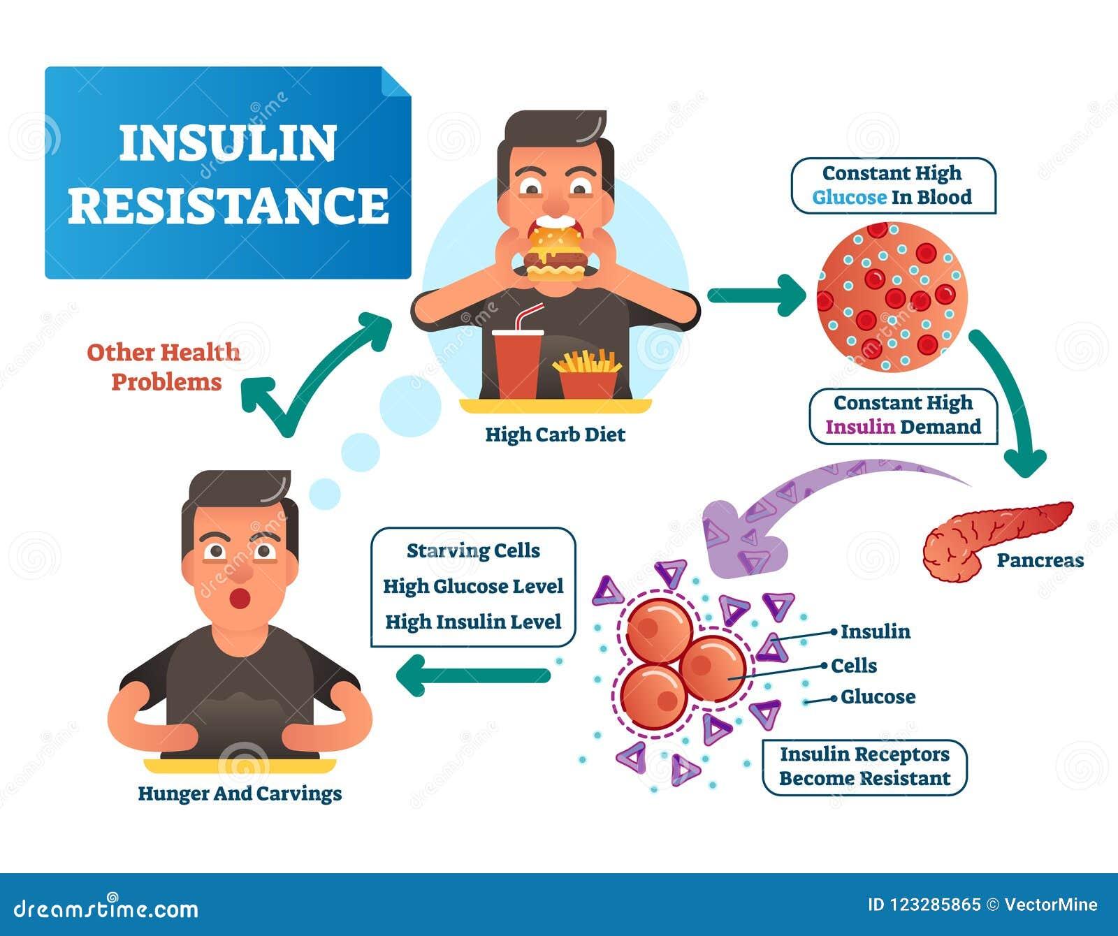 resistencia a la insulina en diabetes