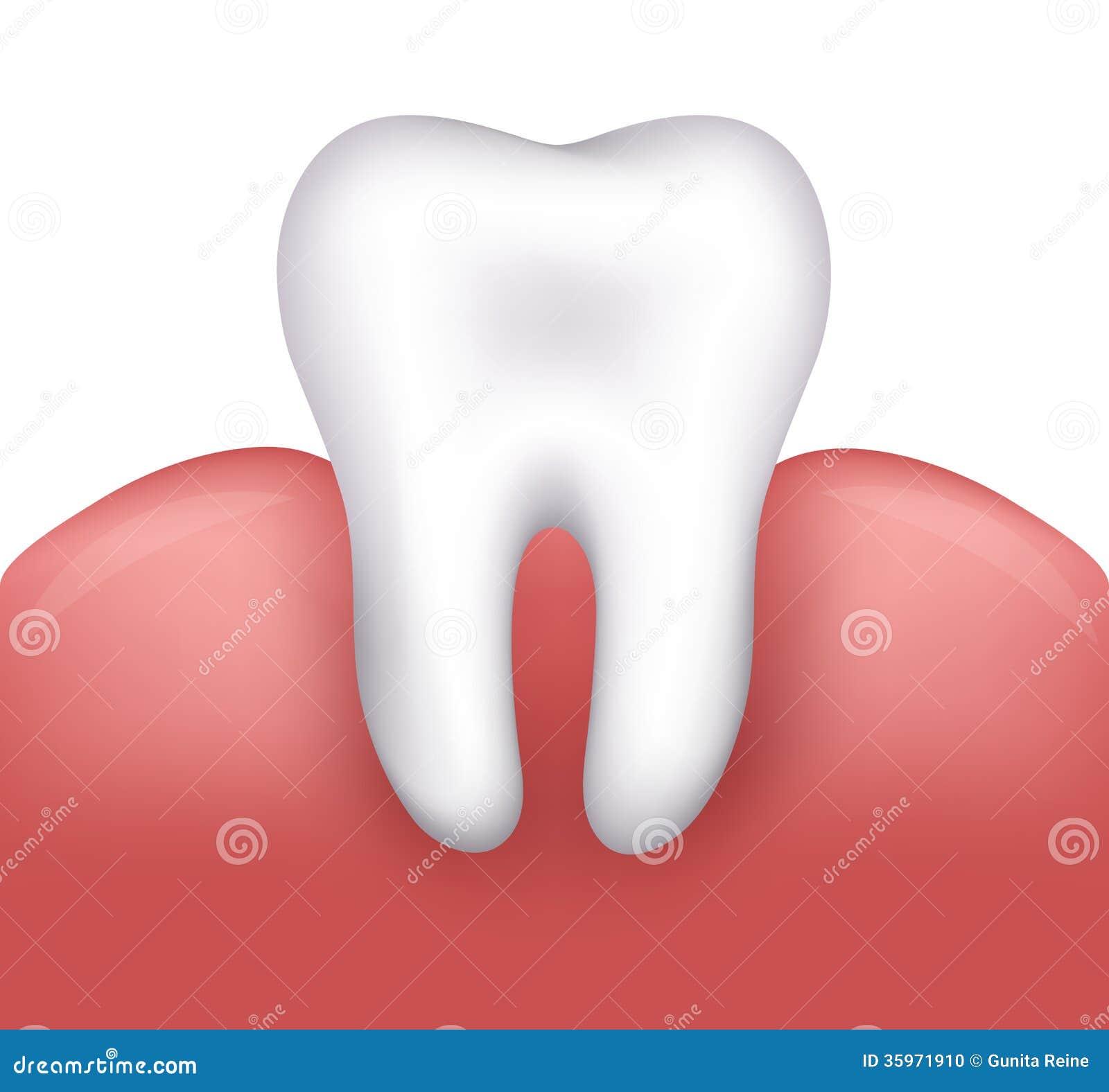 Ejemplo dental hermoso
