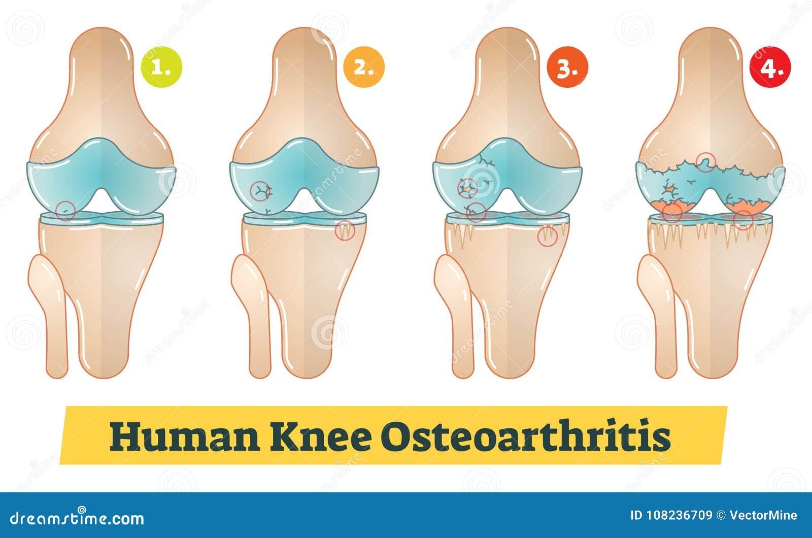 Ejemplo Humano Del Diagrama De La Osteoartritis De La Rodilla ...