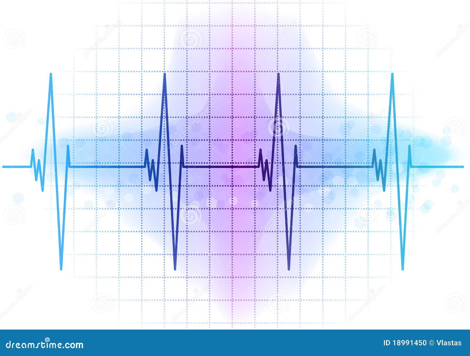 Ekg Diagram Stock Vector  Image Of Healthcare  Cardiogram