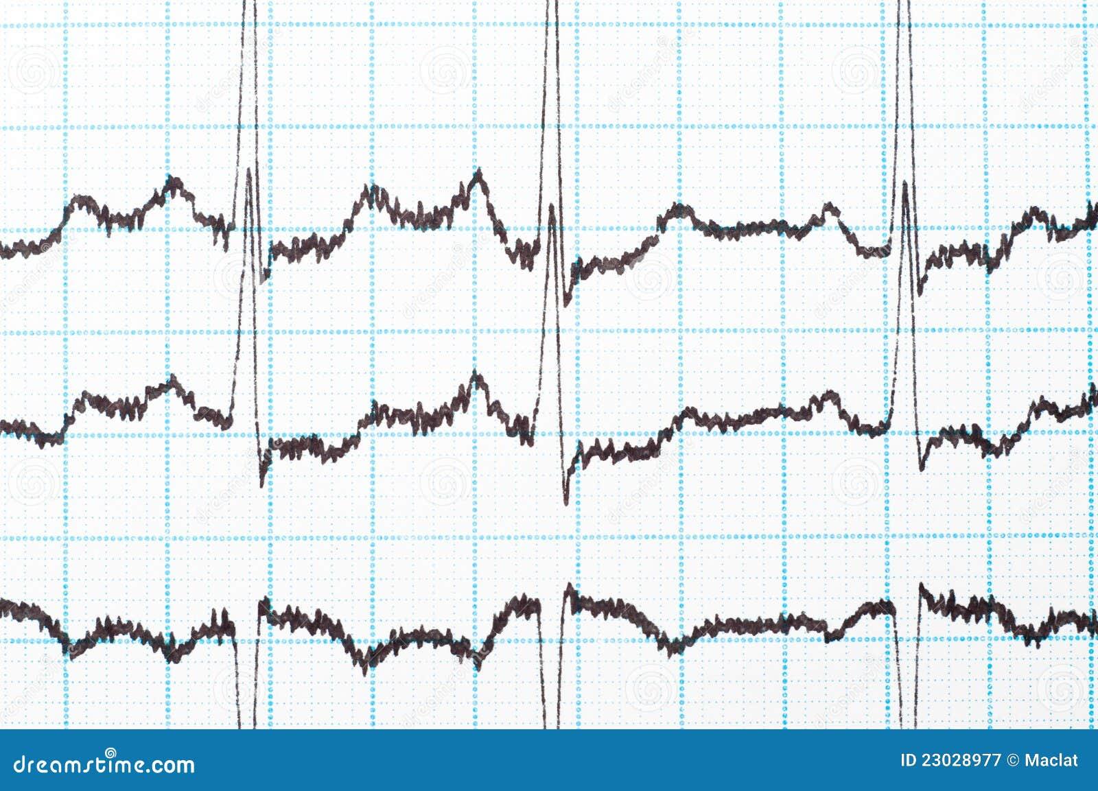 Ekg Diagram Stock Image  Image Of Test  Medicine