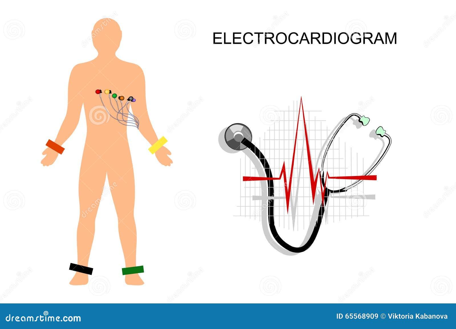 ekg  the patient with the electrodes on the chest stock ekg vector art ekg vector diagram