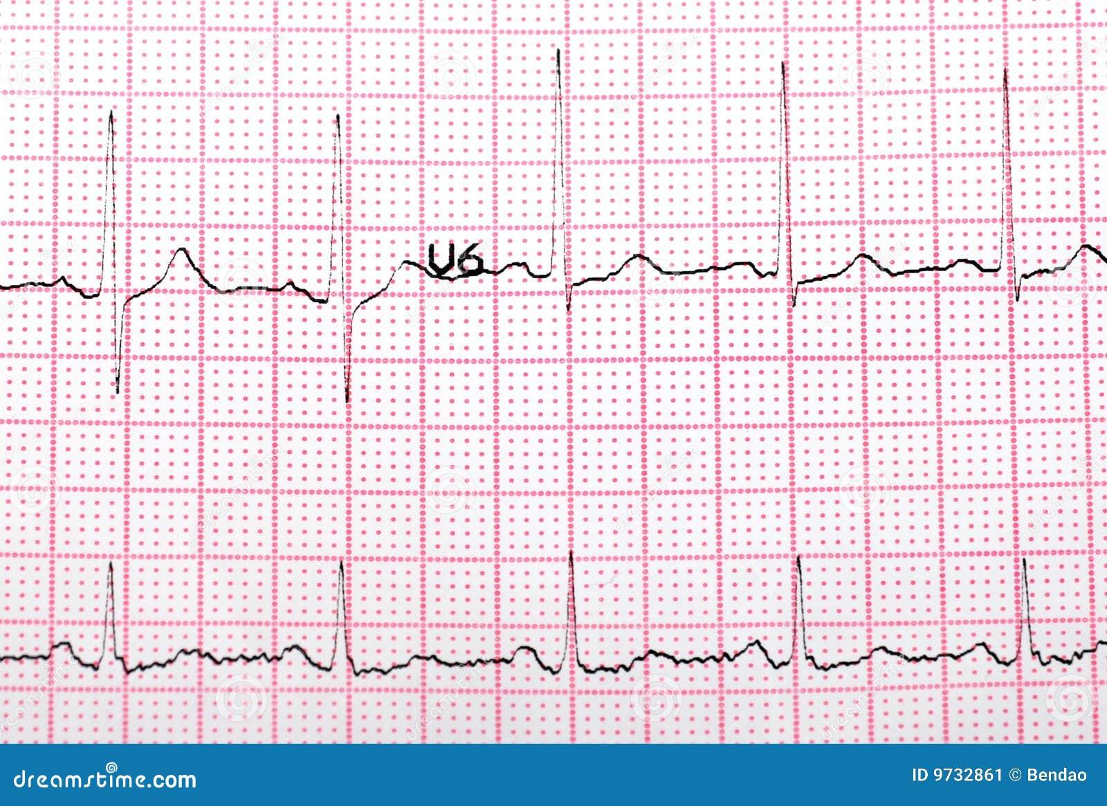 EKG PRINTOUT stockbild. Bild von konzept, inneres, kinetik - 9732861