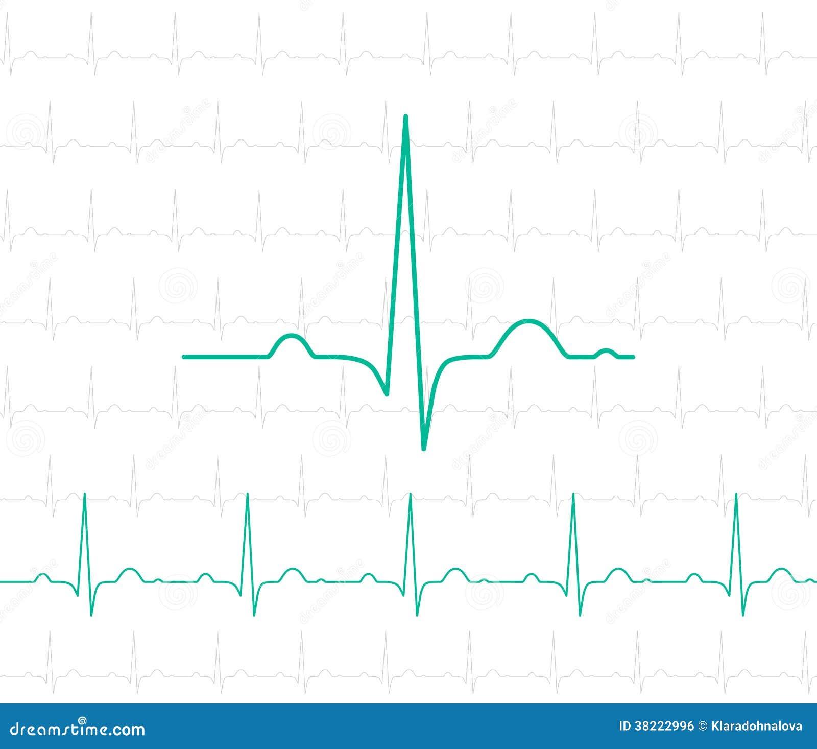 EKG Symbol On White - Medical Background Royalty Free ...