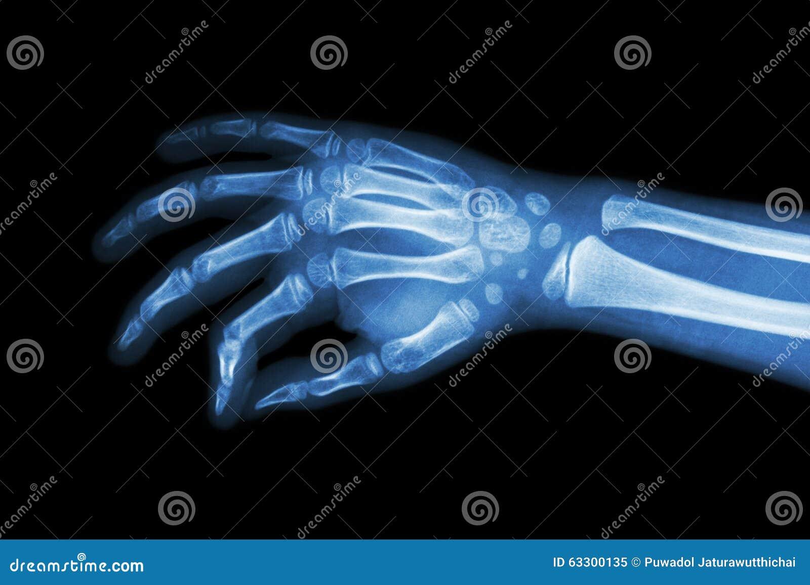 Ekranowa promieniowanie rentgenowskie ręka dziecko (pochylony widok)