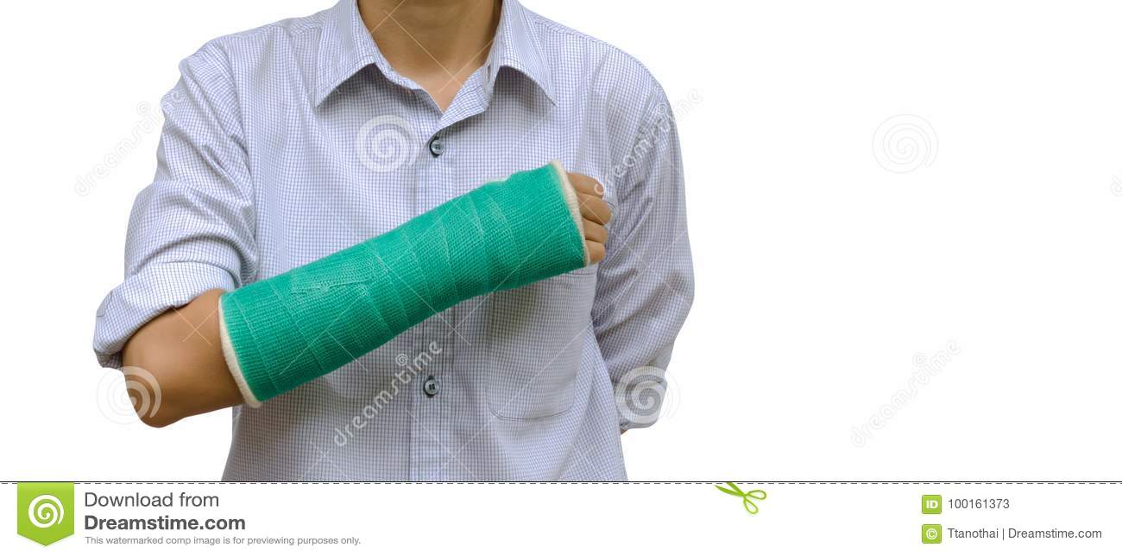 El brazo roto mujer de lesión con verde echó en el brazo que se colocaba en blanco